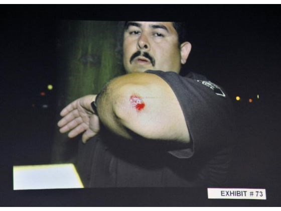 Manuel Ramos presents the injuries he suffered during the beating.